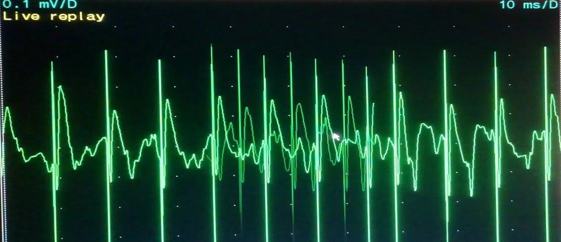 Myotonic Discharges