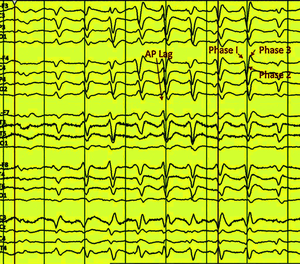 EEG 1